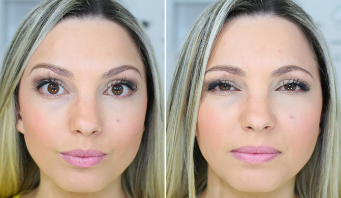 preenchimento e botox! antes e depois