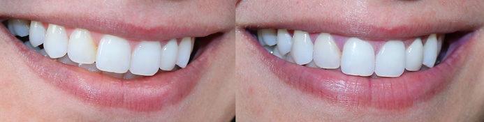 Dentes Mais Brancos Com Violeta Genciana Meu Antes E Depoiseu Vou
