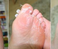 Resenha Footner: meias esfoliantes + hidratante para os pés